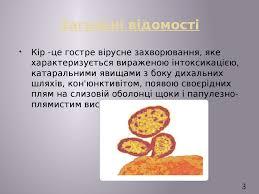 В Україні спостерігаємо черговий прогнозований епідемічний підйом захворюваності на кір