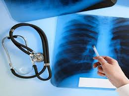 Аналіз стану захворюваності на туберкульоз за 9 місяців 2018 року