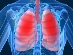 12 листопада – Всесвітній день боротьби з пневмонією.